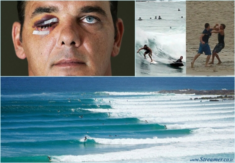 "<font color=""#003366""><strong><font color=""#510000"">Stop the surf rage!</font> Brutal  story from Snapper rocks. A surfer was deliberately speared in the face  by a board. The horrific act happened after a surfer said ' you  remember me?'. The surfer with the busted face had dropped in on the  other surfer months before. <a href=""http://streamer.co.il/articles/view/193"">Click here to read more</a><br /></strong></font>"